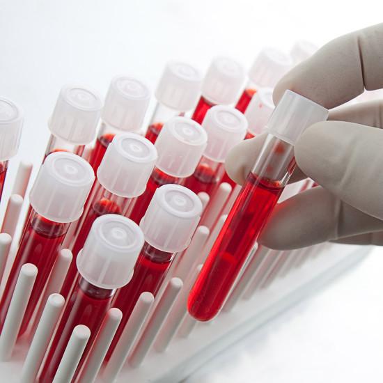 Лабораторная диагностика в клинике Ритм, г. Новочеркасск